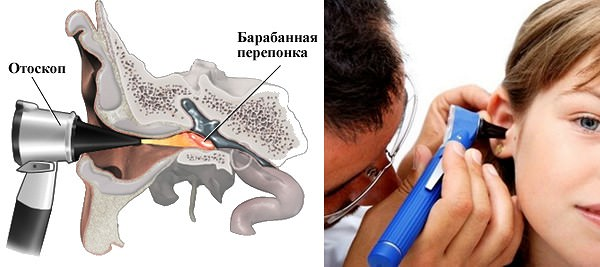 Осмотр органов слуха