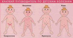 Высыпания при различных заболеваниях