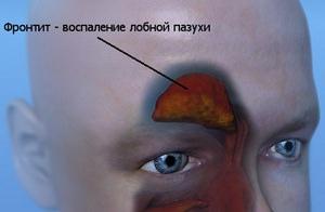 Симптомы хронического фронтита