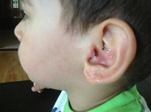 Мочка уха у ребенка с шишкой - в чем причина