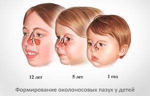 Как вылечить гайморит без прокола у ребенка