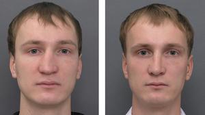 До и после проведения ринопластики