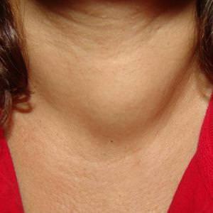Симптомы увеличения щитовидки