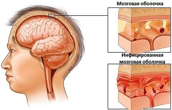 Что происходит при серозном менингите