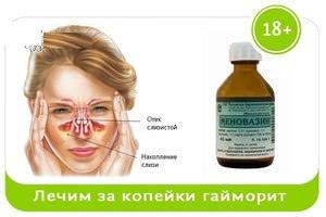 Лечение гайморита с помощью медикаметов