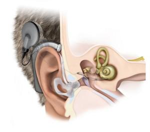 Лечение глухоты