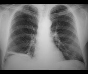 Диагностика воспаления легких