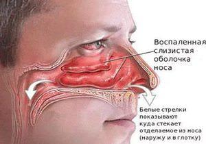 Как лечить воспаленную слизистую носа