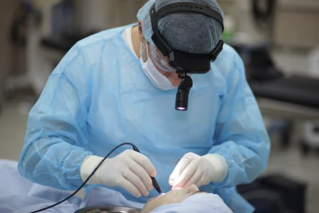 Удаление кисты миндалины