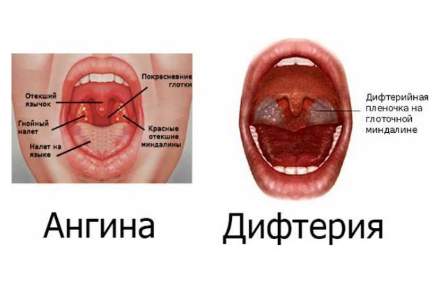 Отличия ангины от дифтерии