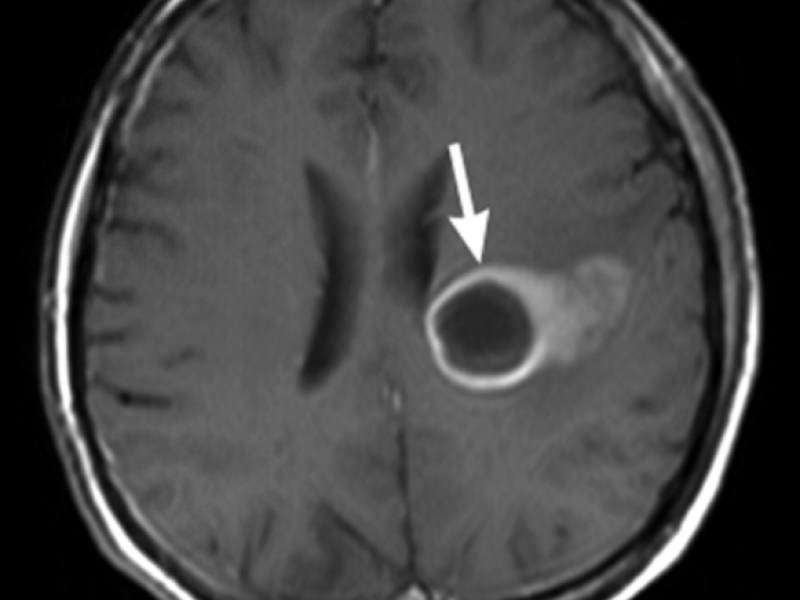 Диагностика абсцесса мозга