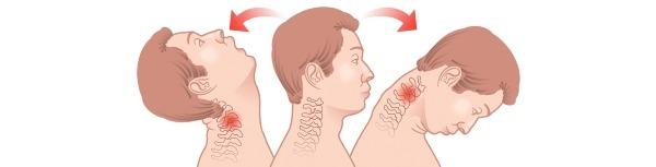 Травмы шеи