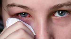 Показания для применения глазных капель Альбуцид