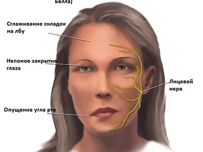Причины воспаления тройничного нерва