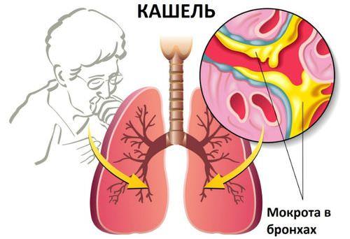 sliz v bronkhah