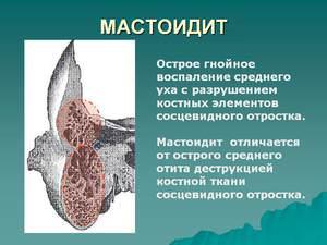 Симптомы левостороннего мастодиита