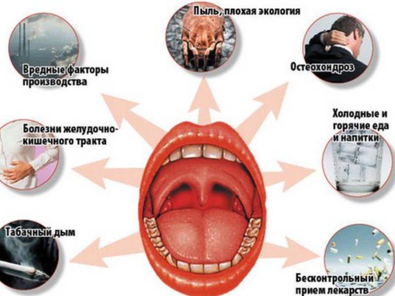 Медикаментозное лечение тонзиллита