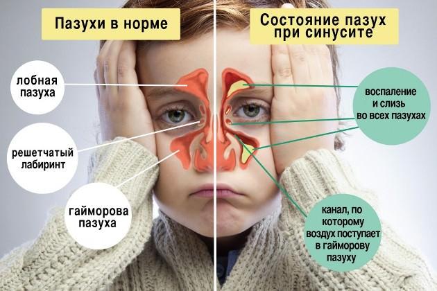 катаральный синусит
