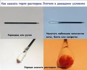 Использование Люголя в форме раствора