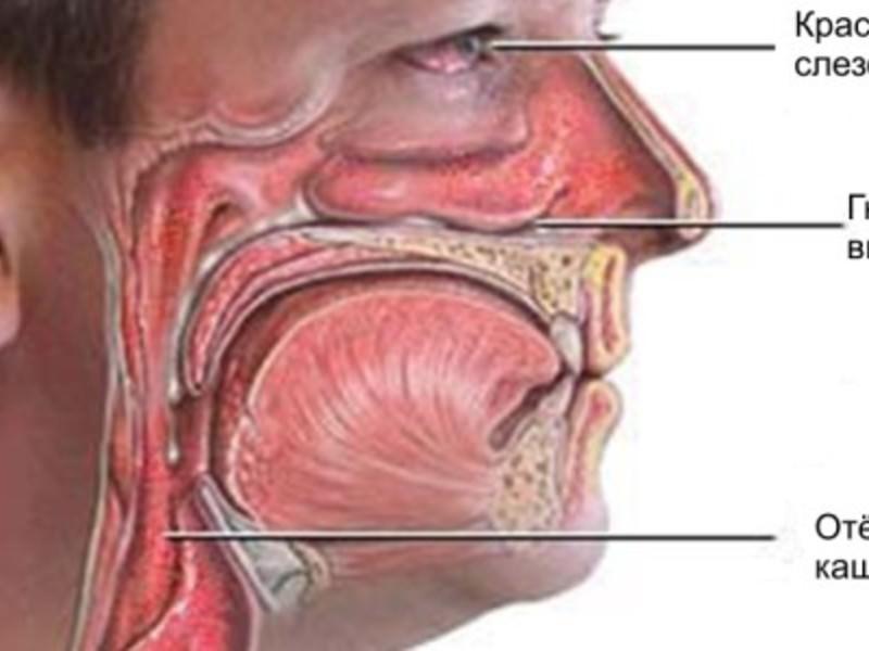Острый ринит вазотомия