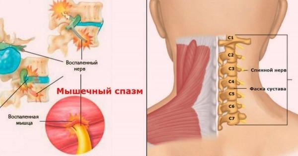 Воспаление мышцы шеи