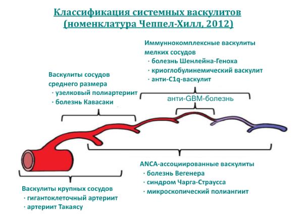Системный васкулит