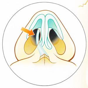 Как проводится операция при конхобулезе