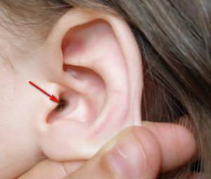 Корочка в ухе и способ от нее избавиться