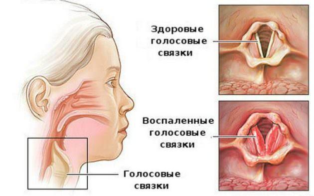 Теоретически при ларингите может болеть горло с одной стороны при поражении одной связки