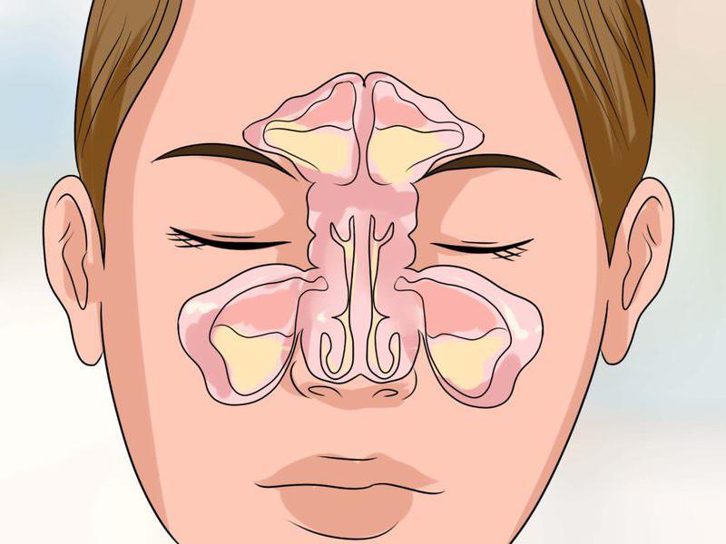 Как лечить гайморит вазотомия