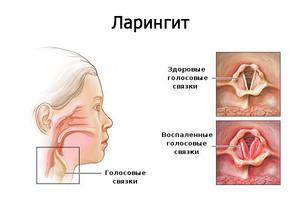 Ларингит - воспаление голосовых связок