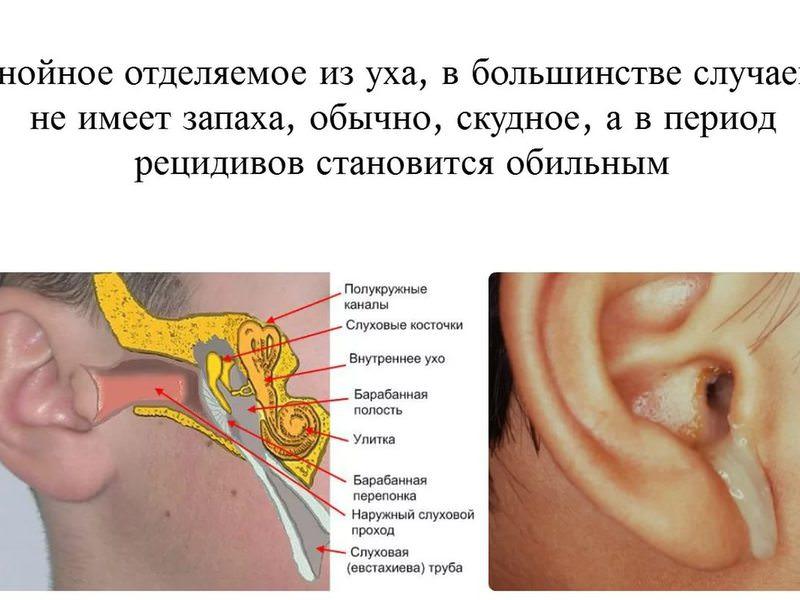 Особенности лечения ушей