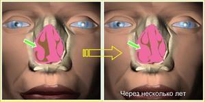 Гипертрофия носовых раковин