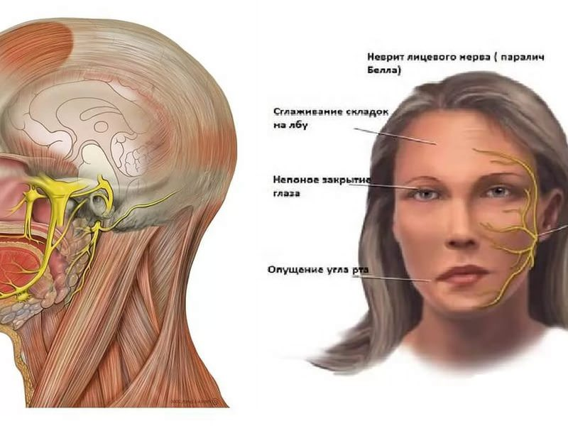 Препараты при воспалении тройничного нерва