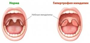 Как определить, воспалены миндалины или нет