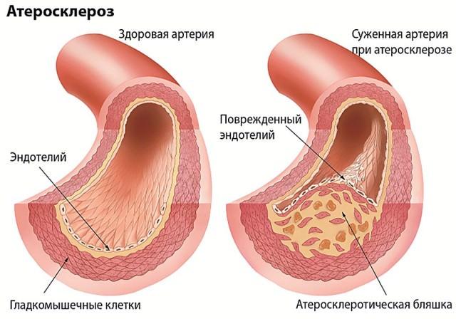 Причины уменьшения кровотока