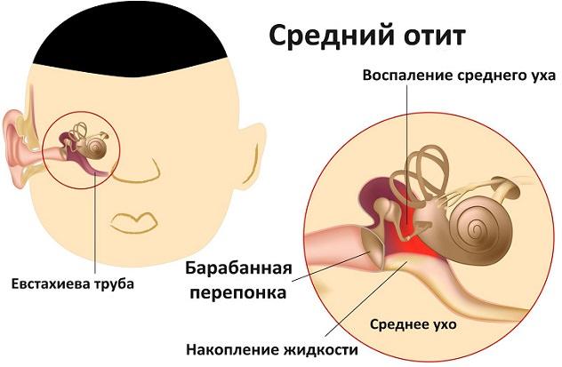 Отит уха