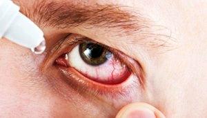 Инструкция по применению глазных капель Альбуцид