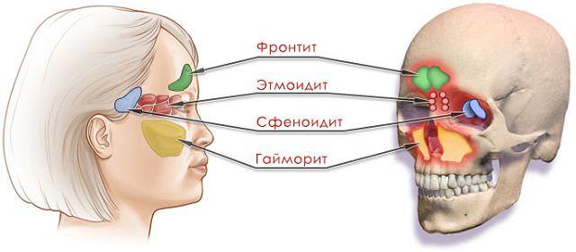 Место болезней