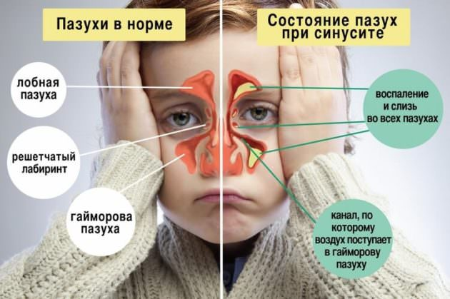Заболевания придаточных пазух носа