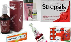 Какие лекарства принимать при фарингите