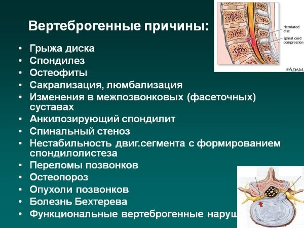 Вертеброгенные причин