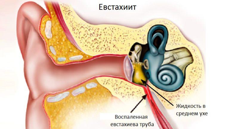 Воспаление евстахиевой трубы