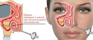 Лечение гайморита без прокалывания гайморовых пазух