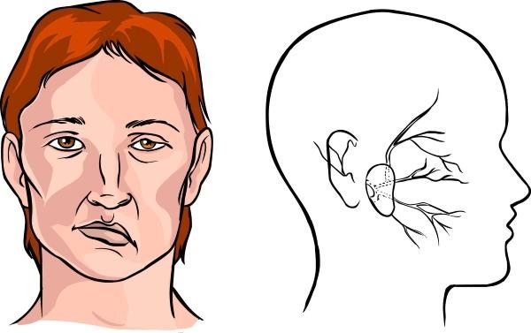 Деформация лица