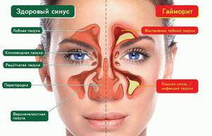 Народные способы лечения фронтита