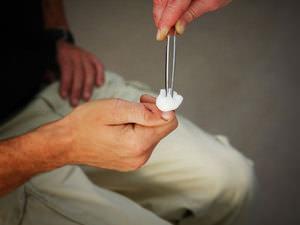Хлоргексидин для внешней обработки