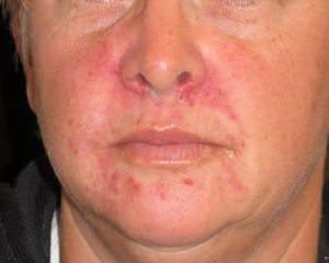 Рожистое воспаление носа