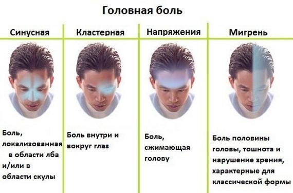 Разновидность головной боли