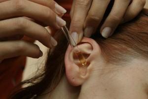 Лечение уха каплями
